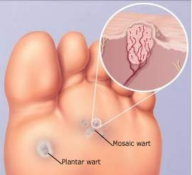 foot wart virus)